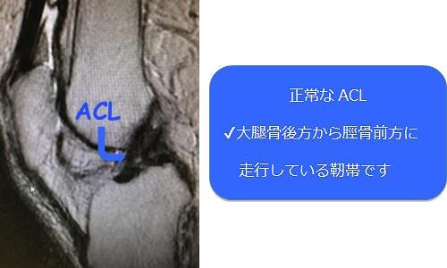 正常なACL