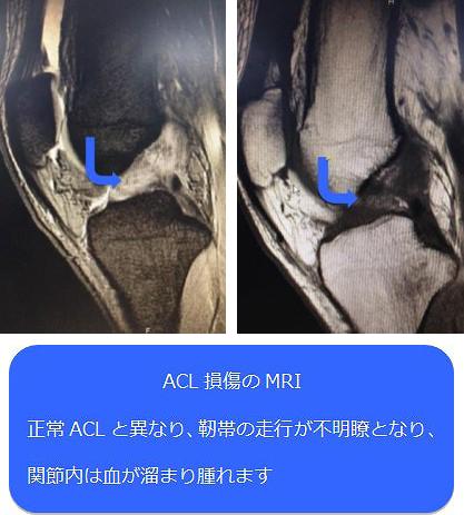 ACL損傷のMRI