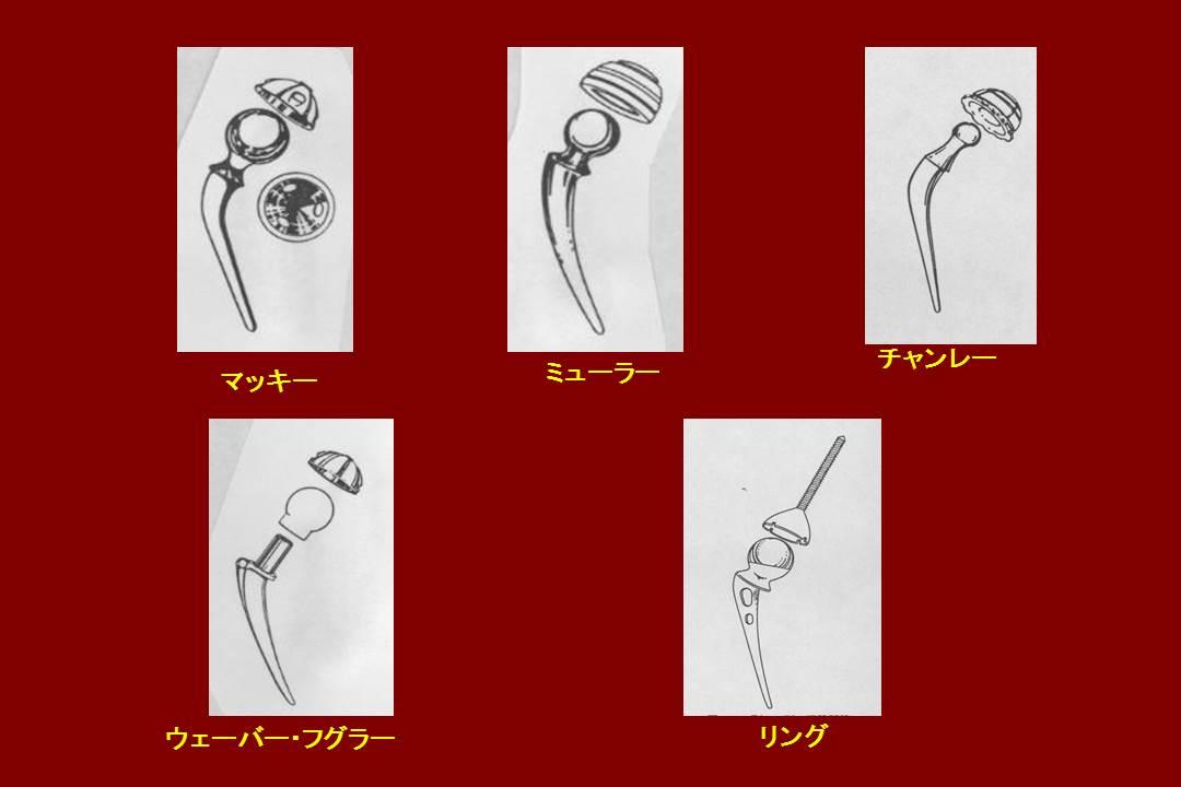 人工関節の原型