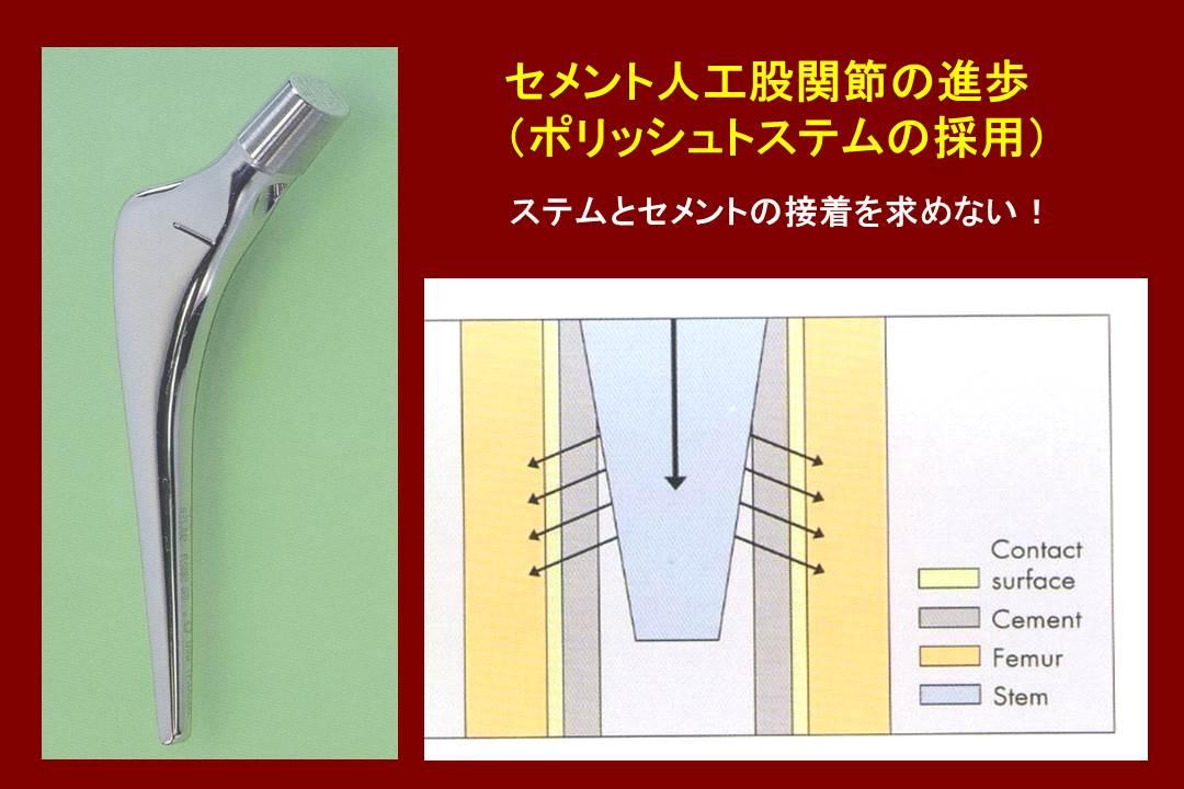 セメント人工股関節の進歩(ポリッシュトステムの採用)