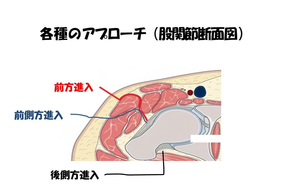 各種のアプローチ(股関節断面図)