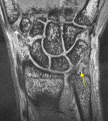 TFCCのMRI画像診断