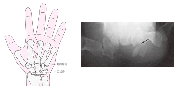 有鉤骨の解剖とレントゲン像
