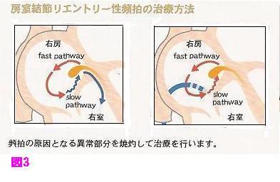 房室結節リエントリー性頻拍の治療方法