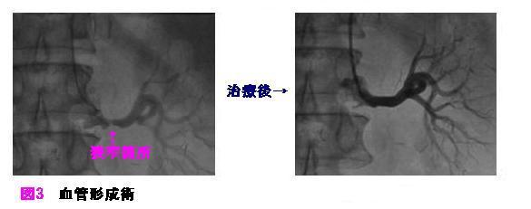 血管形成術