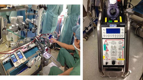 人工心肺装置/心筋保護装置(MPS)